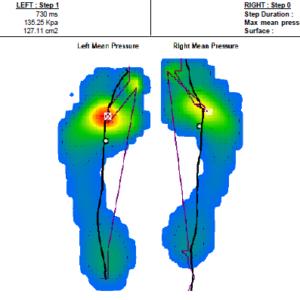 analiza dinamike stopal, mortonov nevrom
