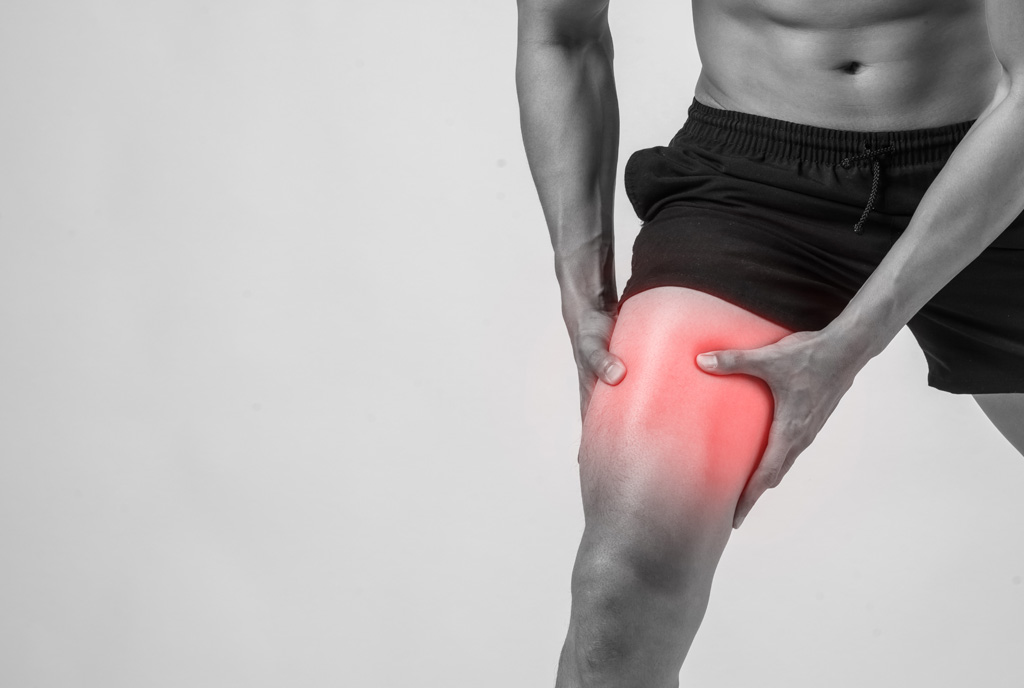 Tekaško koleno ali iliotibialni sindrom