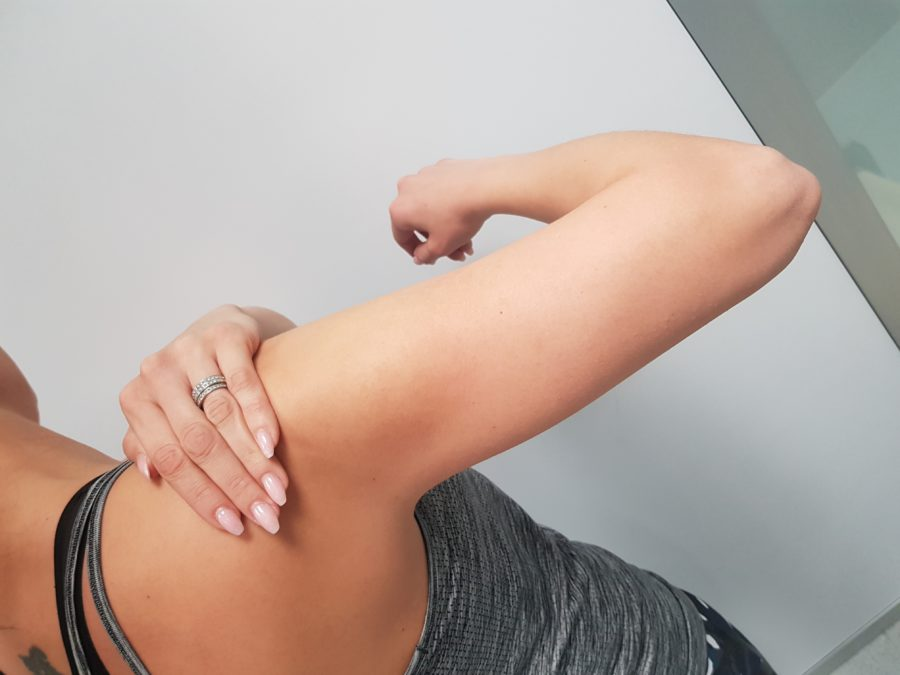 tezave z rameni- zamrznjena rama.