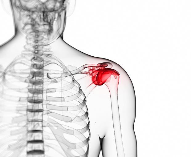 Poškodba ramena in roke
